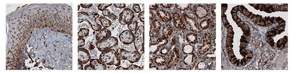 使用抗 TUFM 抗体对人体皮肤、胎盘、肾脏和输卵管进行 IHC 染色.jpg
