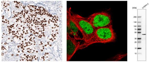 多能性胚胎干细胞是通过表达多种多能性标记物鉴定的.jpg