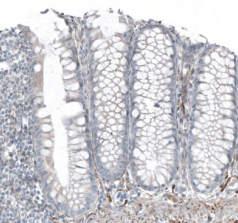 SALL4/ spalt-like transcription factor 4.jpg
