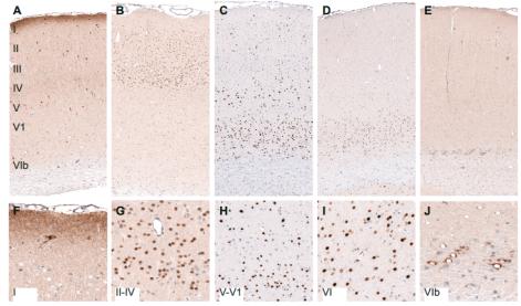 大鼠大脑皮层蛋白质表达的层状分布.png