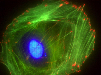 Swiss 3T3细胞anti-vinculin(红色).png