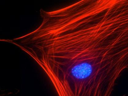 Swiss 3T3 细胞肌动蛋白应激纤维染色.png